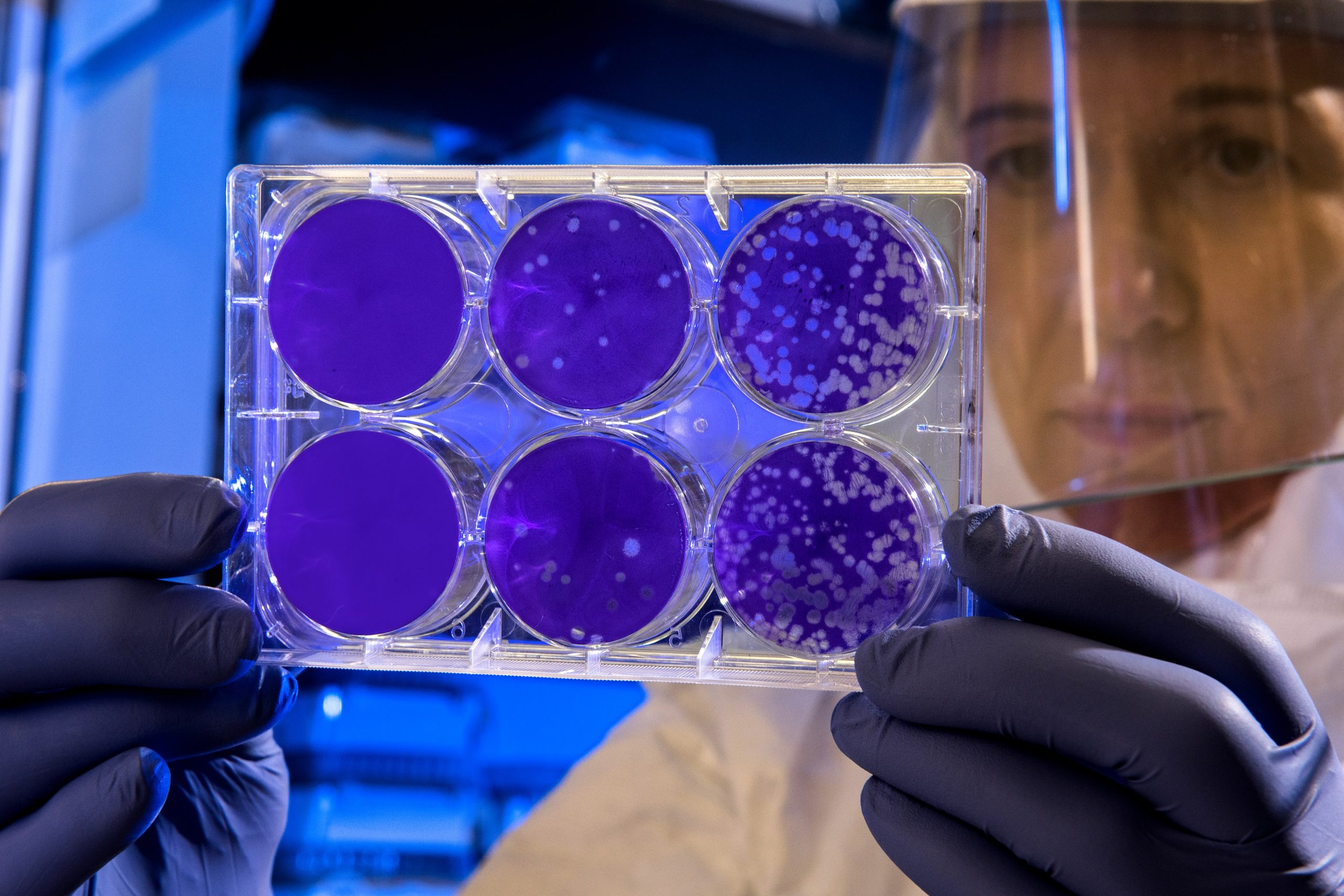 bacterial culture in Petri dishes